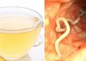 Vücudunuzdakı parazitləri MƏHV EDƏN MÖCÜZƏVİ ÇAY