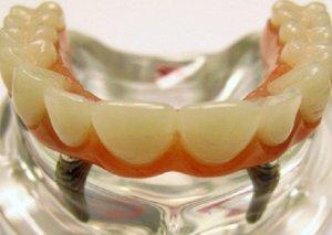 Diş implantları təhlükəli imiş -