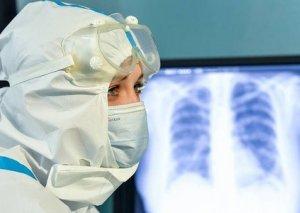 Moskvada koronavirusdan daha 76 nəfər dünyasını dəyişib