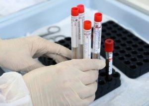 Qırğızıstanda koronavirusdan sağalanların sayı 1340 nəfərdir