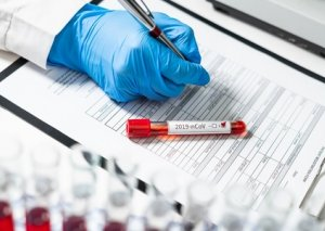 Azərbaycanda daha 556 nəfər koronavirusa yoluxub: