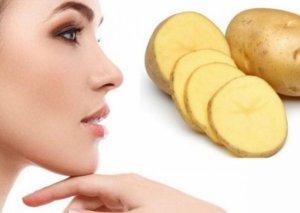 Kartofla sızanaqlardan qurtulun