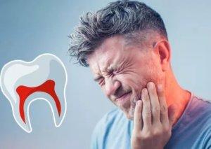 Diş ağrısını kəsən təbii üsullar