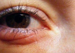 Gözlərin şişməsinə səbəb olan qidalar: