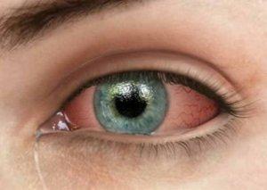 Göz qızartısı bu xəstəliklərin əlaməti ola bilər
