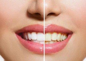 Dişləri ağartmır, çürüdür -